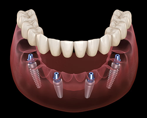 Dental Implants Poway Mouth